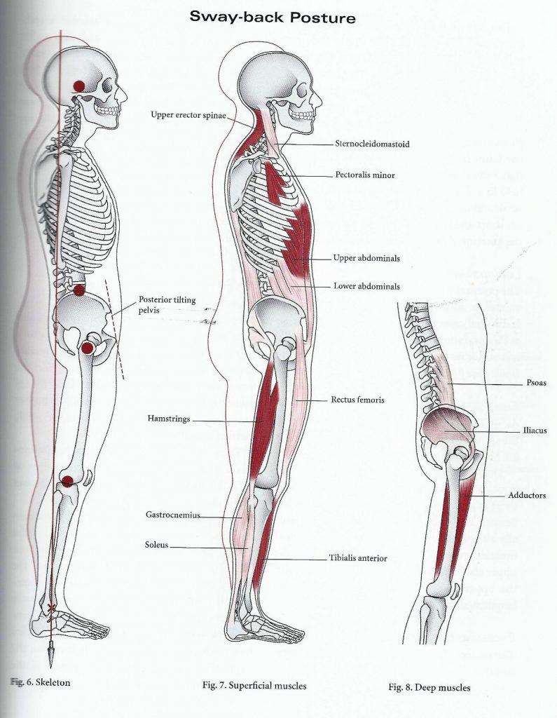 Swayback-musculos