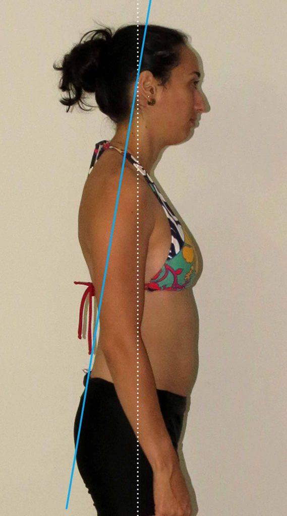 alterações posturais - sindrome cruzada de ombros e pelvica
