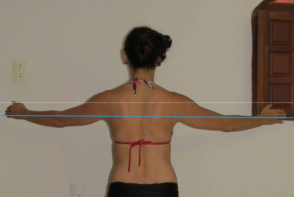 alterações posturais alamento escapular